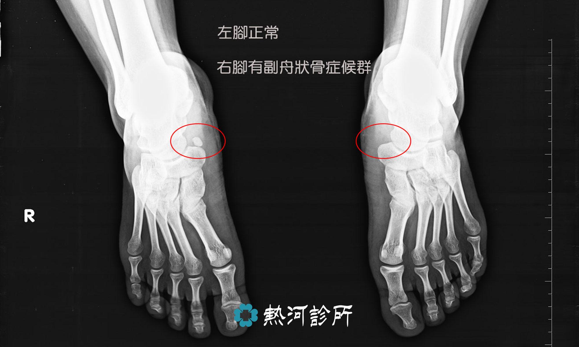 挫傷 治療 骨 【MRI画像あり】骨挫傷とは?症状や診断、治療まとめ!